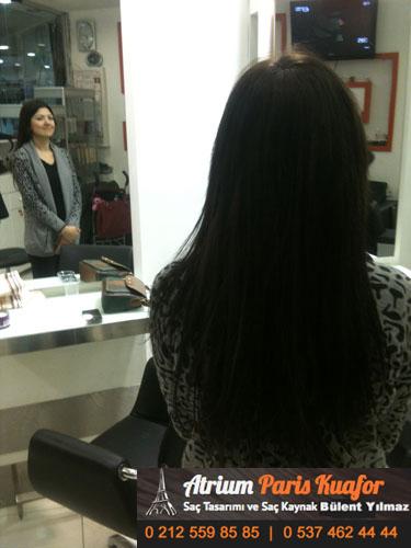 saç kaynak öncesi ve sonrası 55