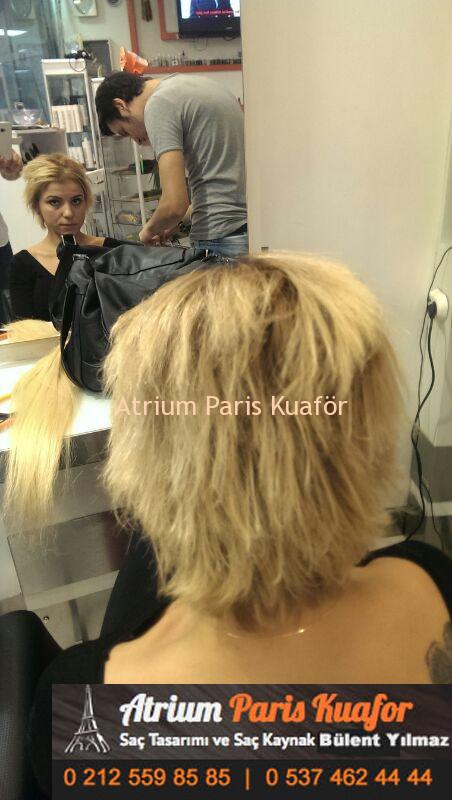 saç kaynak öncesi ve sonrası 7