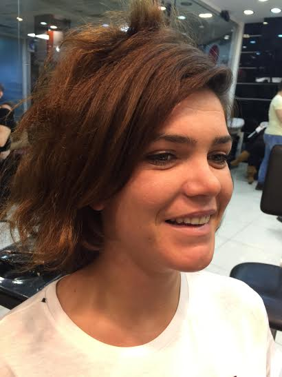 saç kaynak öncesi ve sonrası - 1