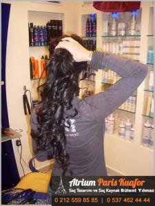 kaynak saç çıkarılması 4