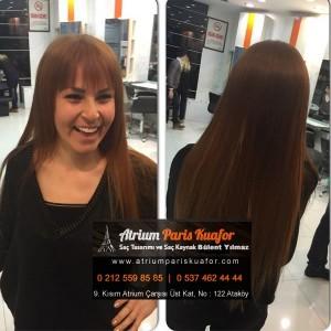 mikro saç kaynak yöntemi 3