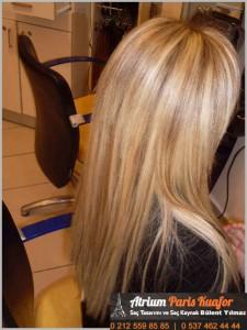 saç kaynağını çıkarmak mümkün mü 1