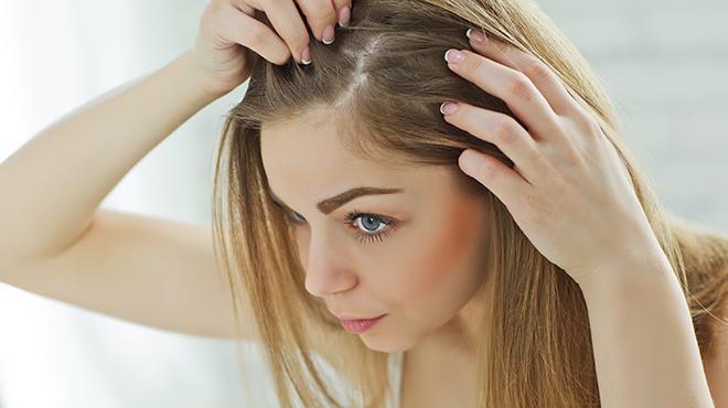 Yağlı Saç Nasıl Temiz Görünür?