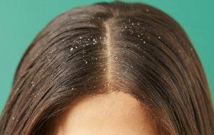 Kaşıntılı Saç Derisi ve Kepekten Nasıl Kurtulunur?