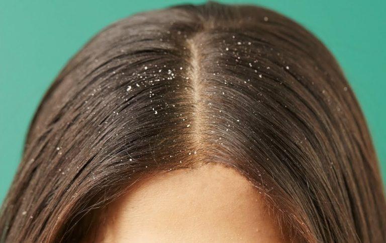 Kaşıntılı Saç Derisi ve Kepekten Nasıl Kurtulunur